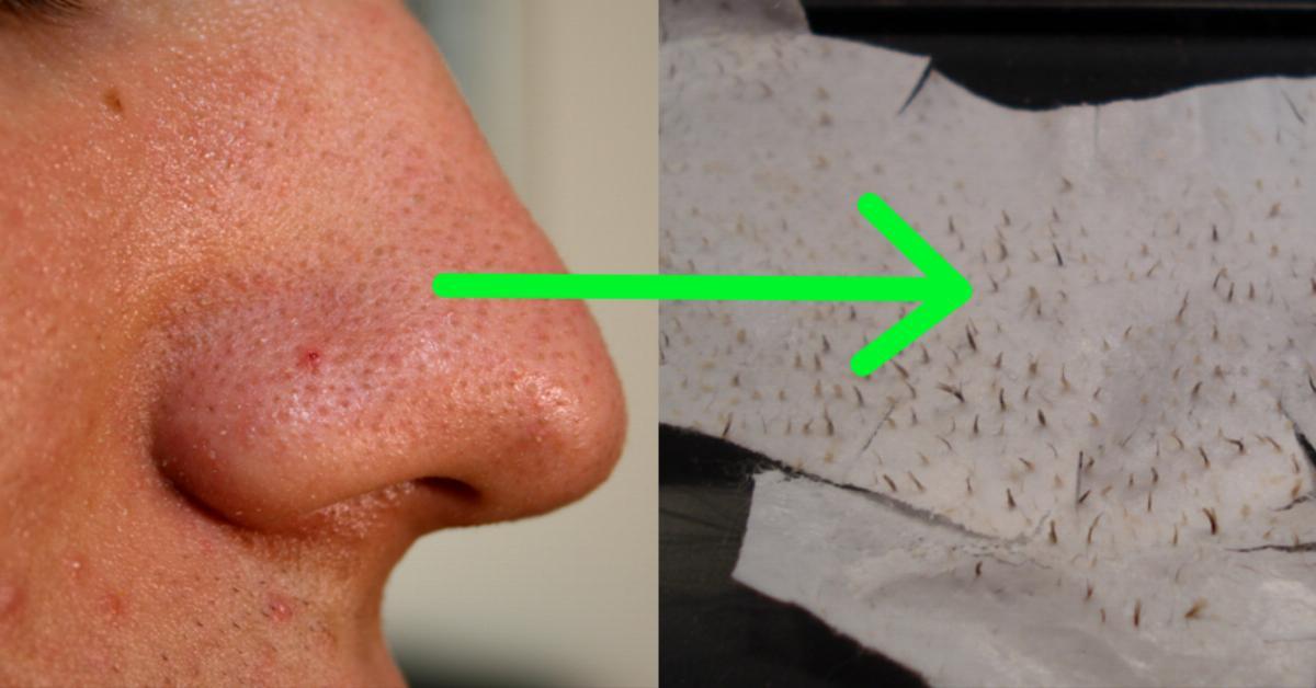 Peeling chimico di una faccia a pelle di problema