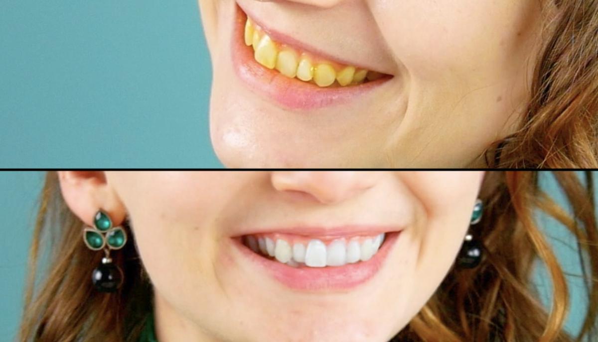 Denti gialli e denti bianchi a confronto