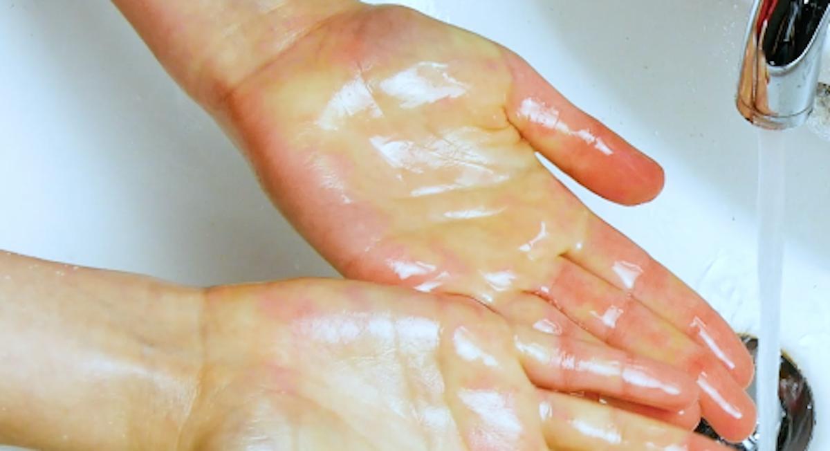 Macchie di grasso sulle mani